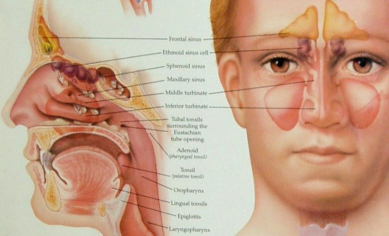 Areas of sinuses